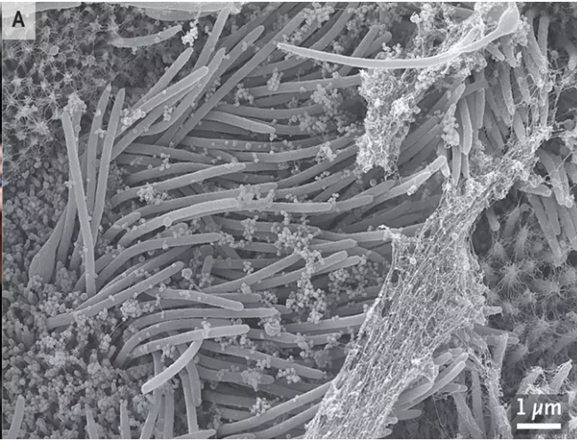 See How A Person's Cell Infected With Corona Virus Looks
