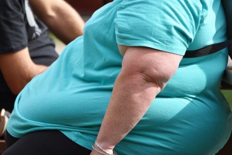 Obese Weight Or Obesity, That Always Worry You!